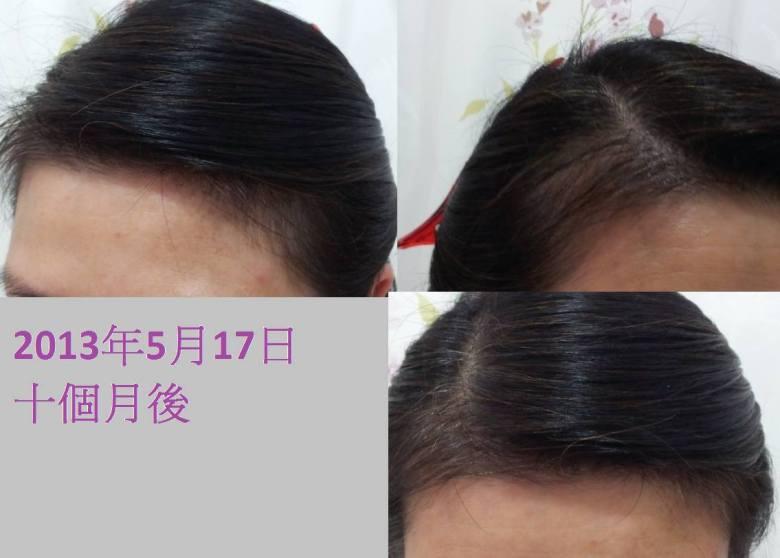 RoyalSpa甘菊洗髮乳用後改變