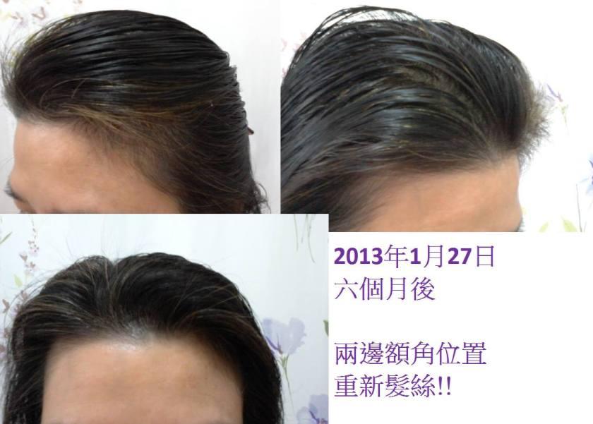 RoyalSpa甘菊洗髮乳用後,7個月後額角重生髮絲